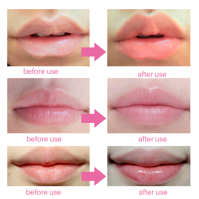5Pcs Lip Plumper Crystal Collagen Lip Mask Pads Moisture Essence Anti Ageing Wrinkle Patch Pad Gel Scrub Lips Care Enhancer 5