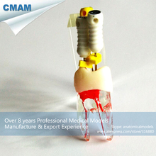 CMAM-TOOTH11 Anatomical Pulp Cavity & Root Model,  Medical Science Educational Teaching Anatomical Models