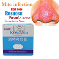 chinese herbal medicine Rosacea treatment red nose acne rosacea ointment remover skin redness flushing vaseline acne treatment