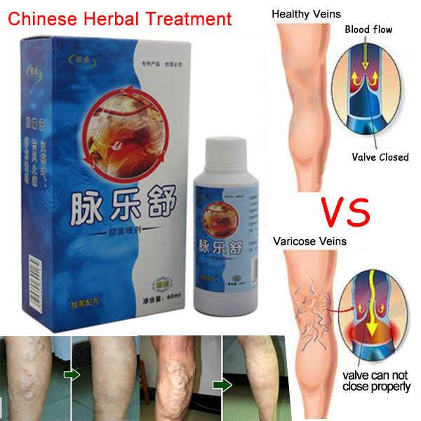 medicina tibetan varicose tratament