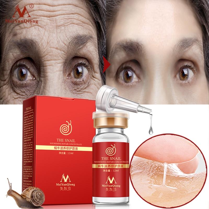 Alta qualidade snail100 % essência líquido ácido hialurônico clareamento local ampola essência diminuir os poros anti-acne regeneração essência