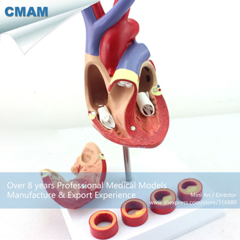 12481 CMAM-HEART05 Life-size Human Heart Anatomy in 2 part with 4 Pieces Thrombosis Cross Section ,Anatomy Models > Heart Models