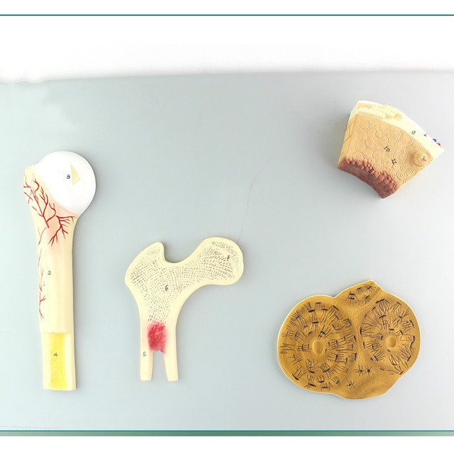 Aliexpress Buy Humans Bone Structure Modelcancellous Bone