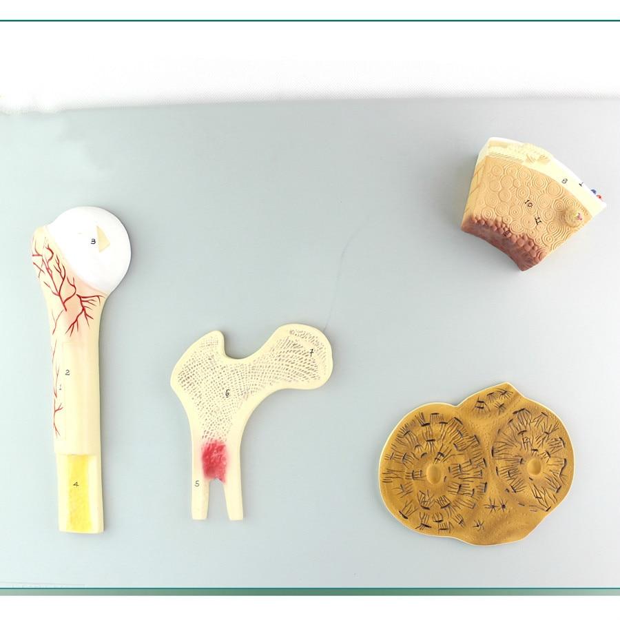 Menschen Knochen Struktur Modell, Cancellous Knochen, kompakte ...