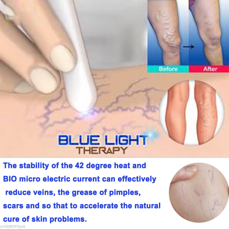 recenzii laser tratament varico)
