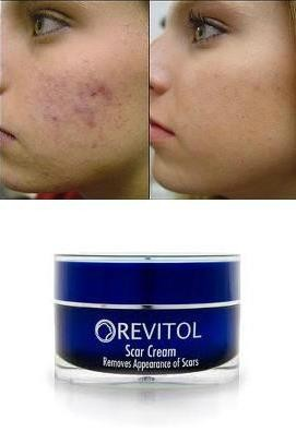 Revitol Scar Removal Cream Remove Scars Reduce Acne Scars Treatment With Acne Scar Removal Lotion 1 Jar 2 Fl Oz Treatment Foundation Treatment Servicetreatment
