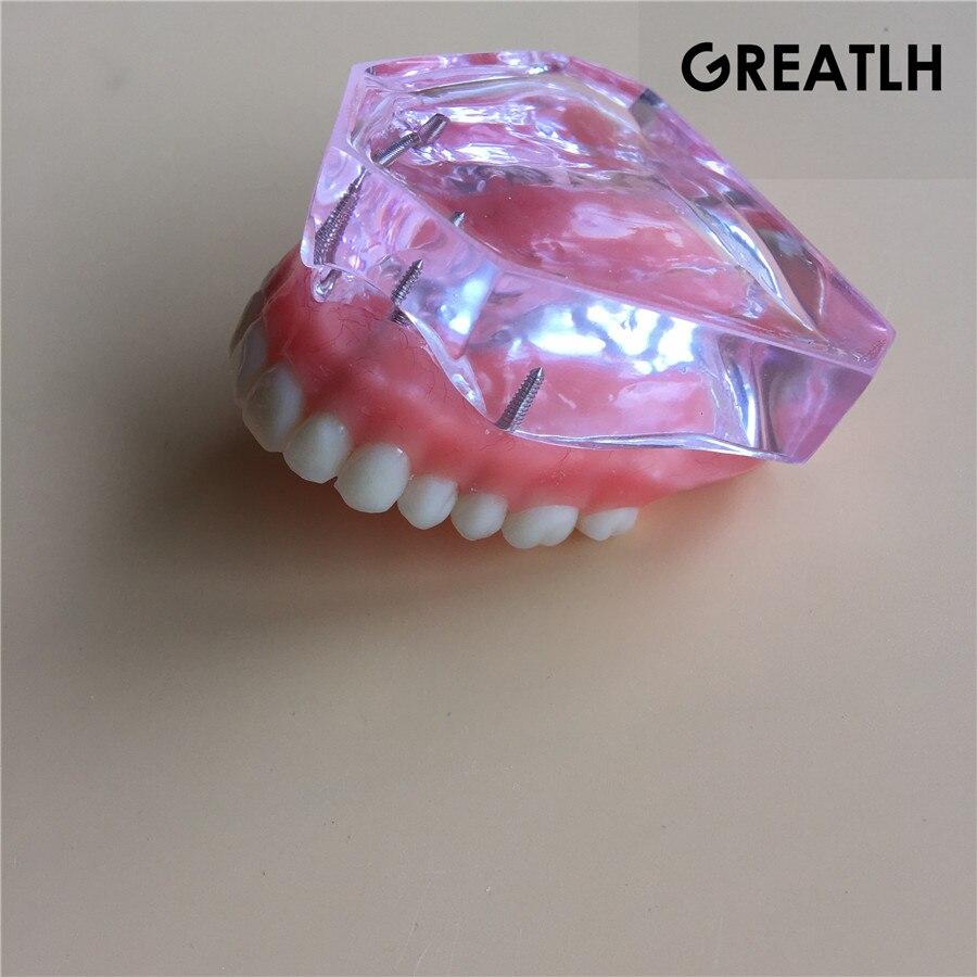 Modèle d'implant dentaire modèle de dents dentaires - 2