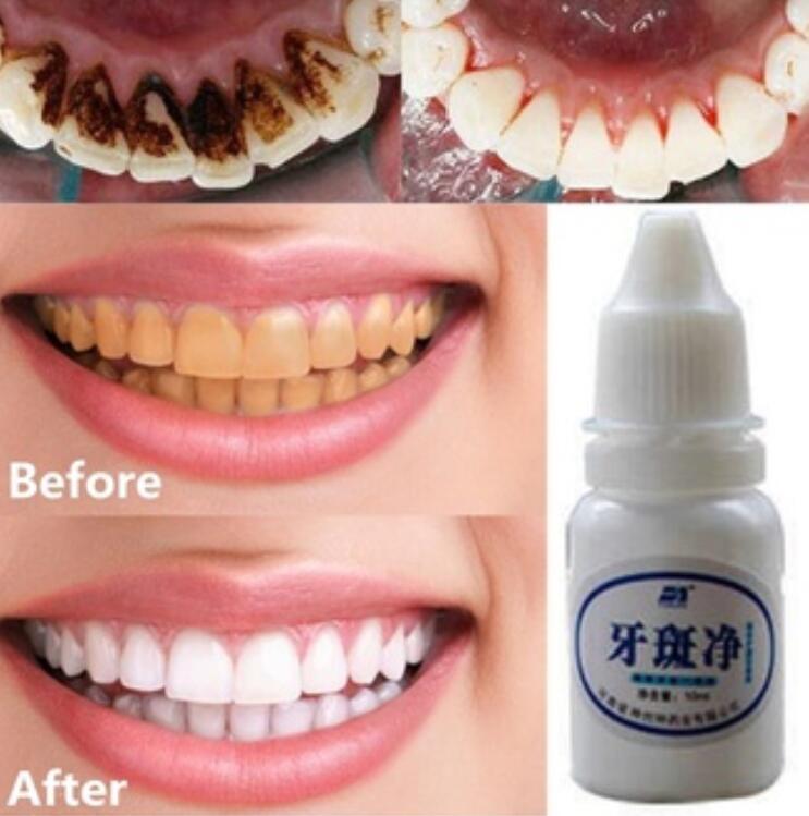 10ml Teeth Whitening Air Oral Hygiene Pembersihan Gigi Perawatan