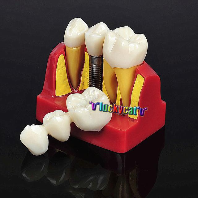 1 Conjunto Dental Dental Implant Análise Crown Ponte Demonstração Teeth Modelo