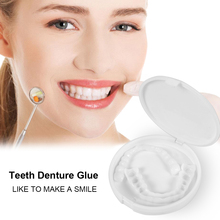 Dental Removable Brace Veneers
