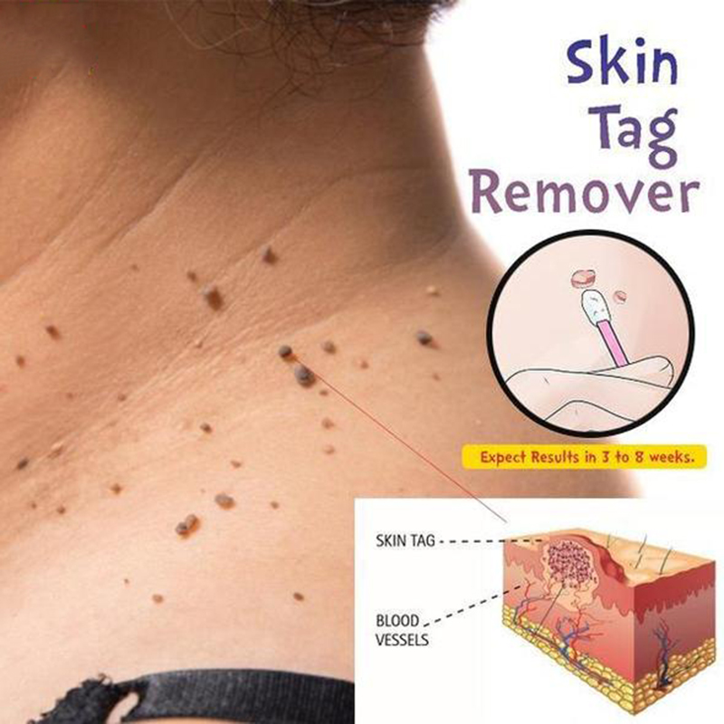 Skin Tag Mole Wart Remover Eye Skin Tag Remover 12 Hours Remover 10ml(China)