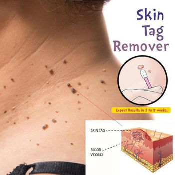 Skin Tag Mole Wart Remover Eye Skin Tag Remover 12 Hours Remover 10ml