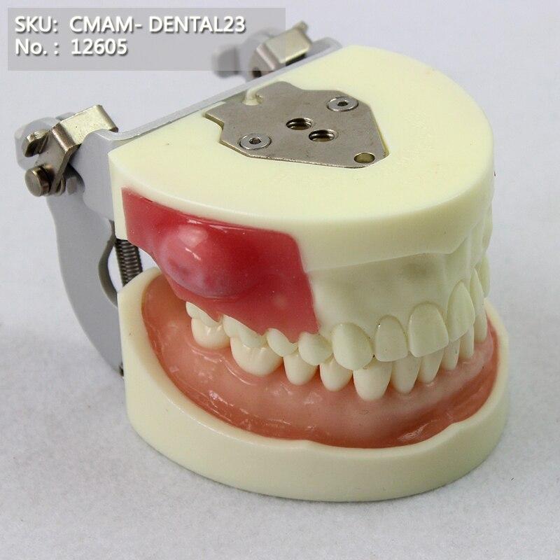CMAM/12605 Dental- Abscess resection, Human Oral Dental Medical Teaching Anatomical ModelCMAM/12605 Dental- Abscess resection, Human Oral Dental Medical Teaching Anatomical Model