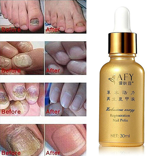 New arrival font b Nail b font Regeneration font b Nails b font Care Polish Oil