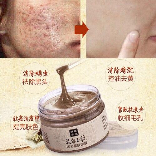 Free Shipping facial mask acne scars remover mite face care treatment blackhead whitening cream skin care moisturizing 120g