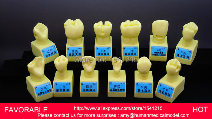 TOOTH DISEASE PATHOLOGICAL ANATOMICAL MODEL OF TEETH CARIES ,4 TIMES CAVITY PREPARATION ABUTMENT TOOTH MODEL-GASEN-DEN049