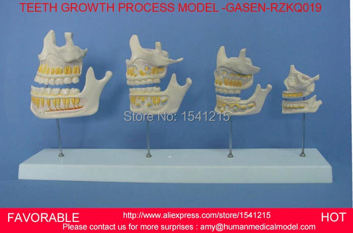 DENTAL CARIES MODEL,DENTAL DENTAL MODEL ,DENTAL CAST MODEL FOR DEPARTMENT ,HALF TOOTH GROWTH PROCESS MODEL -GASEN-RZKQ019 2016 dental orthodontics typodont teeth model half metal half ceramic brace typodont with arch wire