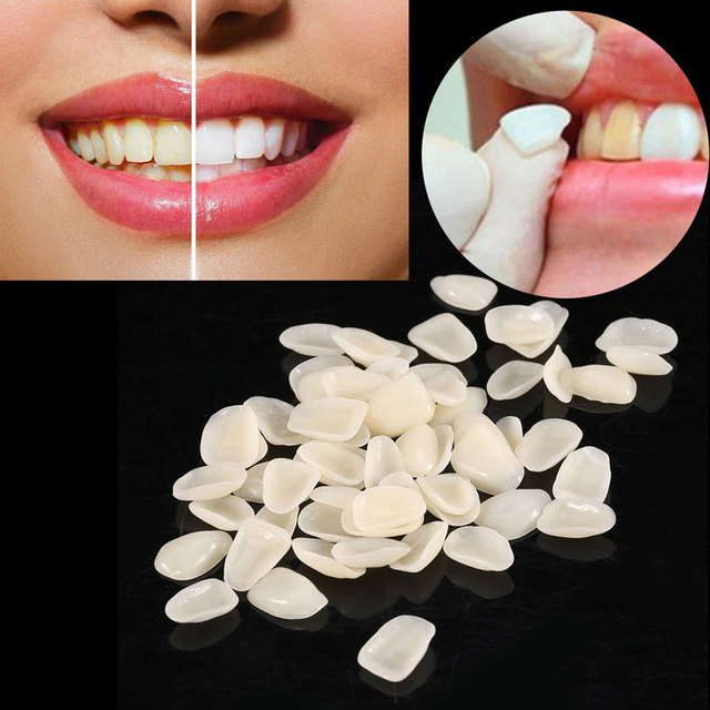 70Pcs  Crown Ultra-Thin Tooth Patch Resin Temporary teeth for Anterior Teeth Veneers Provisionals