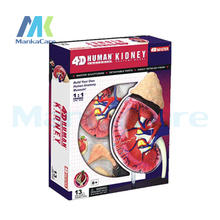 4D MASTER Puzzle assembly Human assembled model medical teaching Kidney Model 3D structure puzzle human body