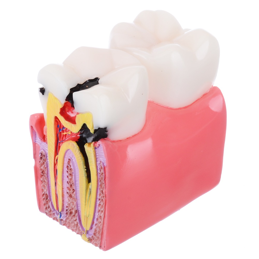 1pc Dental Anatomy Education Teeth Model 6 Times Caries Comparation Study Models For Dentist Studying and Researching