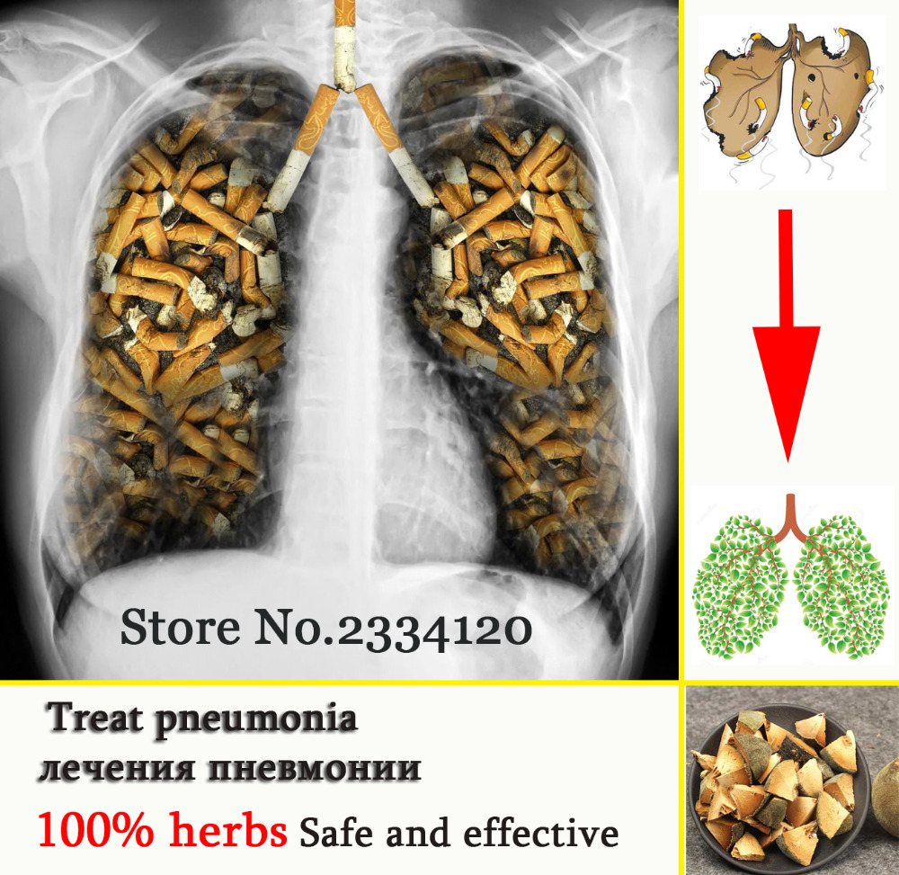 Buying chinese herbs online - Chinese Herbs Powerful Treat Pneumonia And Treatment Of Lung Disease Caused By Smoking Reduce Asthma Treating