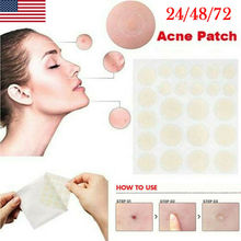 72PCS Skin Tag Acne Patch NEW Hydrocolloid and Remover Patches USA