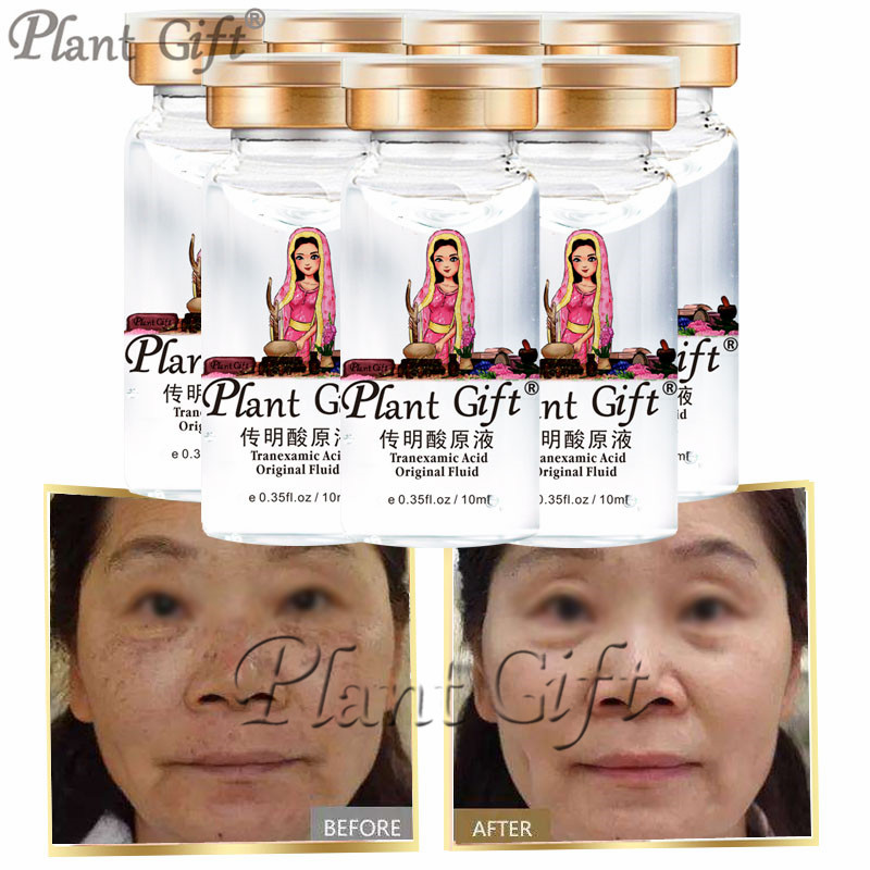 10ml*7pcs Plant Gift Book Tranexamic Acid Original Fluid Face Care Freckle Removal Whitening