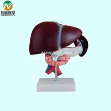 Liver Pancreas Duodenum Model BIX-A1047 WBW265