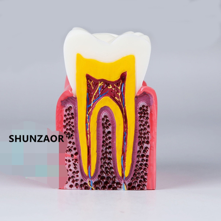 S6X Zoom Caries Tooth Model Dentist Patient Communication Anatomy Monomer Model Teaching Aids Equipment 2018 new denture teeth model 6x caries comparison model tooth decay model dentist for medical science teaching