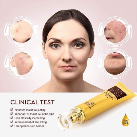 LANBENA Acne Scar Removal Cream Skin Repair Face  scar removal cream Acne Spots Whitening Cream Skin Care (no box)  TSLM1 Islamabad