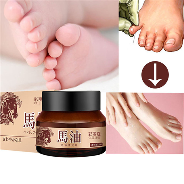 anti itch foot cream