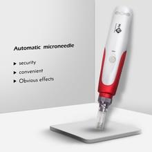 купить!  Микро-штыревая ручка иглы игольчатый картридж игольчатые наконечники для электрических микро-прока