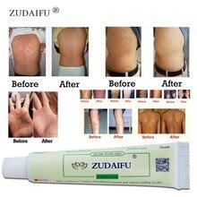 ZUDAIFU skin care product relieve Psoriasis Dermatitis Eczema Pruritus effect Wi