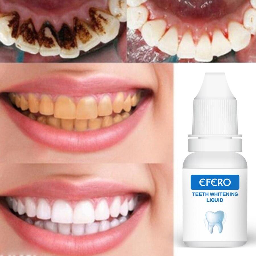 1 Pcs Zähne Bleaching Gel Oral Hygiene Entfernen Flecken Plaque Reinigung Zahn Bleichen Essenz Bleaching Serum Dental Care Efero
