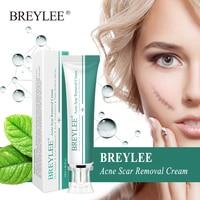 BREYLEE Acne Scar Removal Cream 30g Face Cream Skin Repair Skin Care Scar Acne Treatment Remove Stretch Marks Whitening Cream 2
