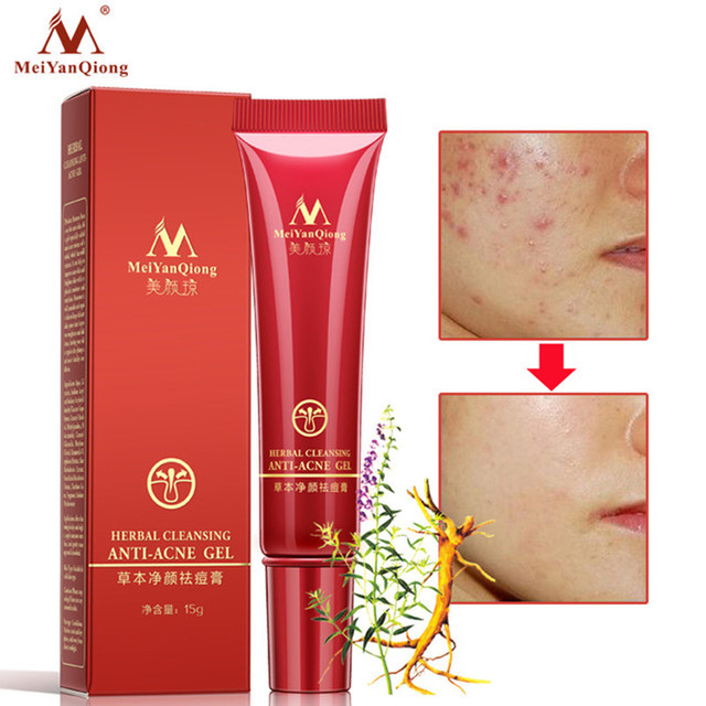 De haute Qualité À Base de Plantes Nettoyage Visage Anti acné traitement  crème À Base de 13c9ac4f91b