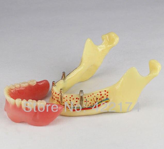 Livraison Gratuite Implant modèle de la mâchoire inférieure dentaire dent dents dentiste modèle de l'anatomie denanatomical odontologia mandibule