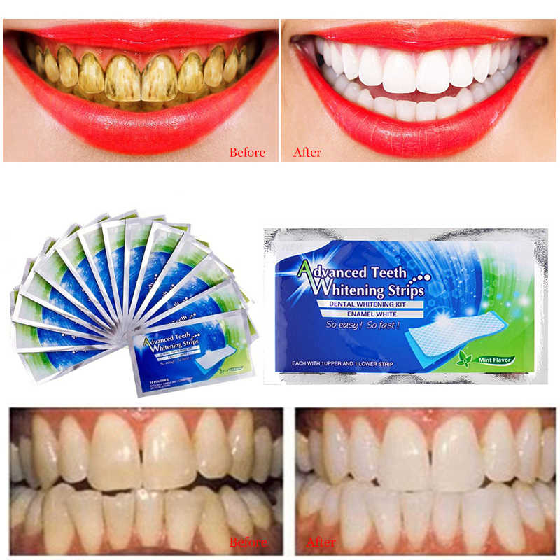 1pc Professional Dental Teeth Whitening Strip Dental Supplies Tooth Whitener Strip Blanqueador Dental Oral Hygiene Tool TSLM2