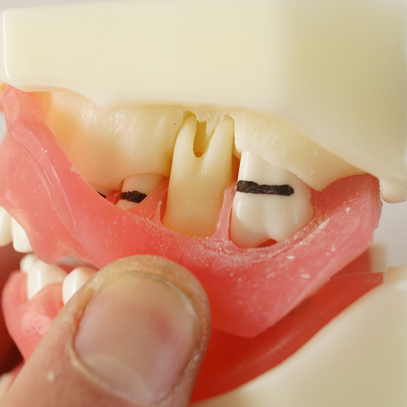 1set Medical Science Teaching Dental Implant Disease Peridontal Disease Model practical dental implant disease teeth model peridontal disease model medical science teaching