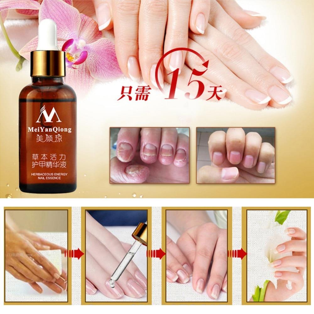 New Fungal Nail Treatment Essence Nail and Foot Whitening Toe Nail ...