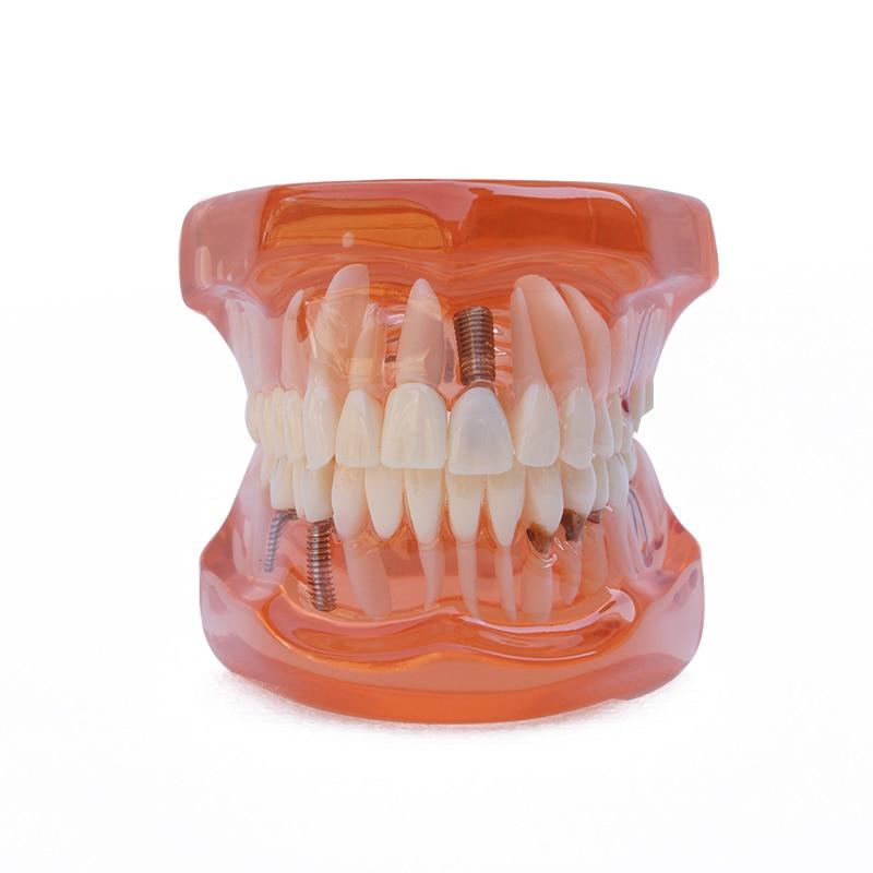 1PC Οδοντικό εμφύτευμα μοσχεύματος - Στοματική υγιεινή - Φωτογραφία 4
