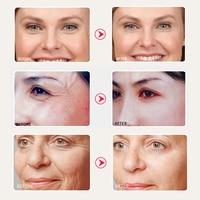SOMILD 24K Gold Face Cream Snail Essence Anti Aging Wrinkle Removal Facial Lotion Whitening Moisturizing Korean Skin Care Set 4