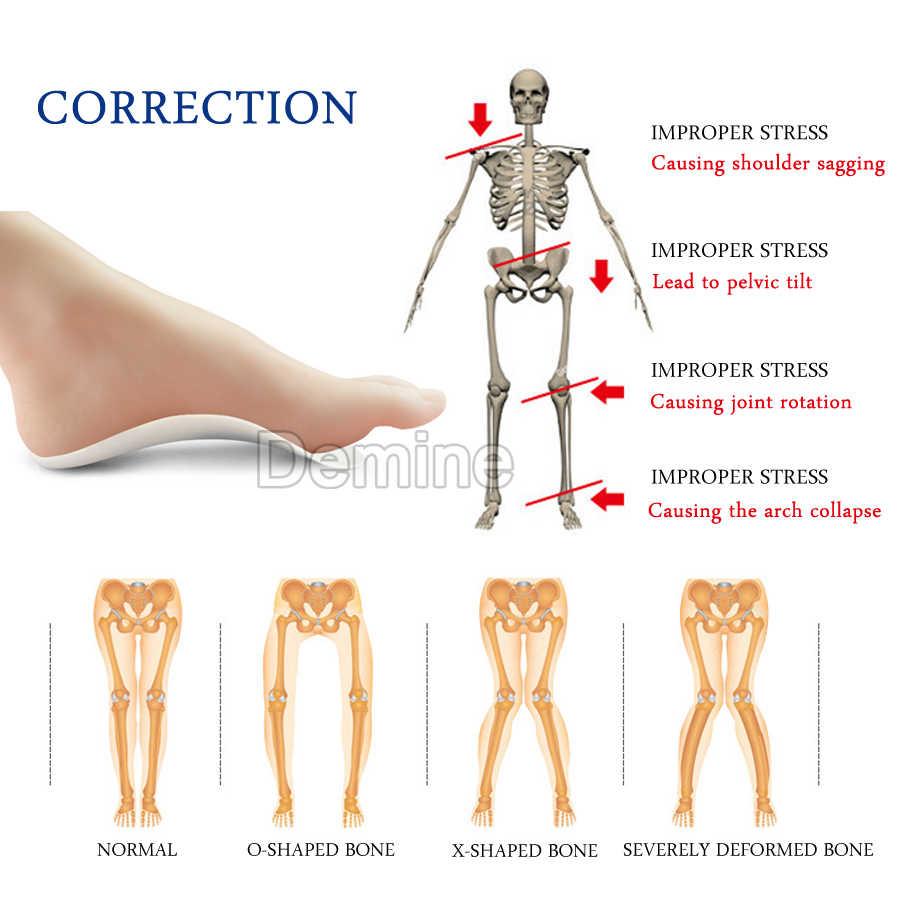 Orthotic Arch Support Insoles ซิลิโคนเจลรองเท้าสำหรับ Flatfoot Orthopedic X O ขาแบนผู้ชายผู้หญิง Health Care พื้นรองเท้า Pad