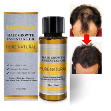 30ml Natural Hair Growth Serum Essence Anti Hair Loss Liquid Polygonum Ginger Extract Hair Growth Essential Oils for Men Women