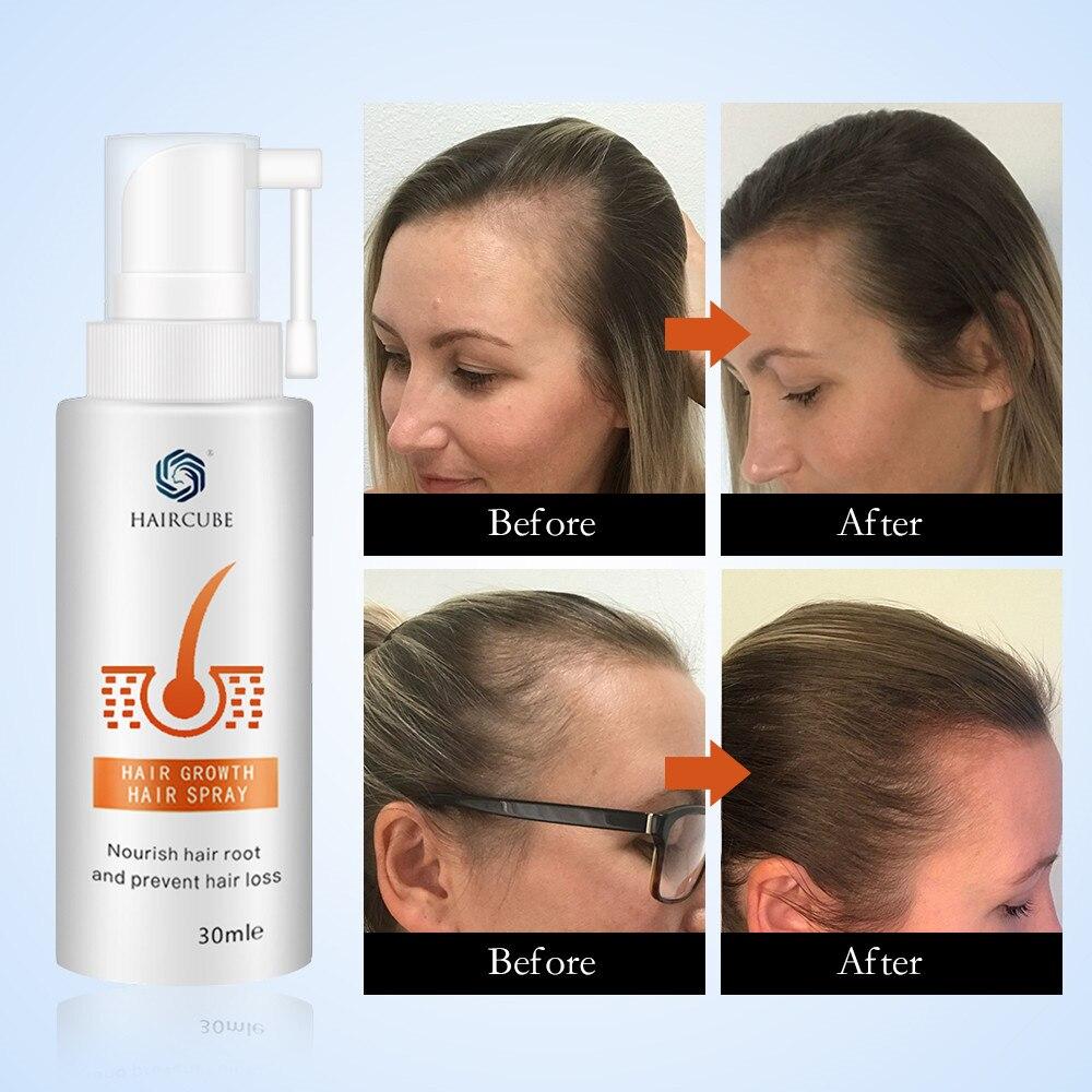 anti soro da perda de cabelo do 04