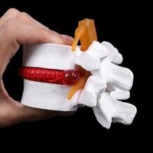 Human Anatomical Lumbar Disc Herniation Model Learn Aid Anatomy Instrume Au06 19 Dropship