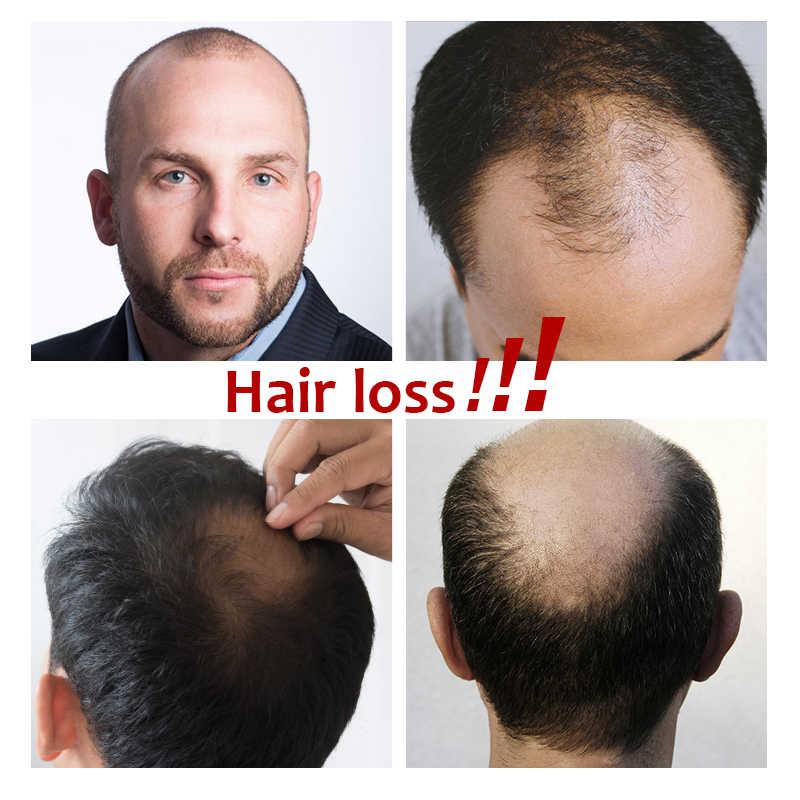 Herren toupet Französisch Spitze Mit PU Perücke 6inch Remy Indisches Haar Ersatz System Menschliches Haarteile Toupet Für Männer