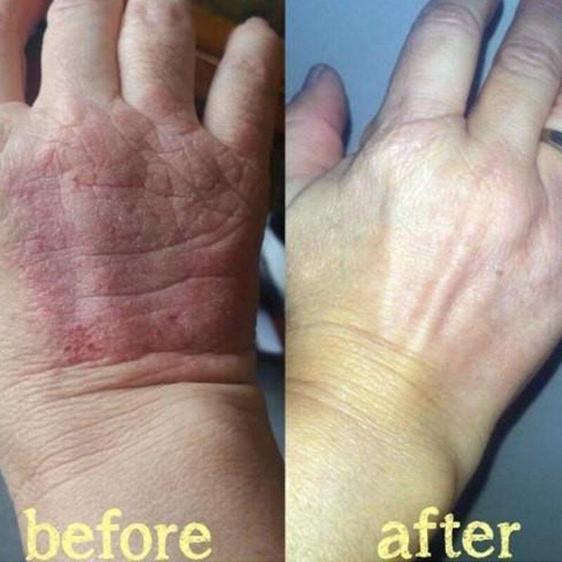 Zudaifu crema per la psoriasi della pelle dermatite ecematoide Eczema unguento trattamento crema per la psoriasi crema per la cura della pelle 2