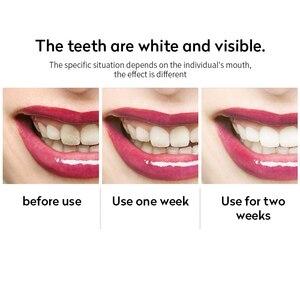 Image 5 - Brosse à dents électrique sonique, Type U, brosse à dents automatique paresseux à chargement USB, 360 degrés, outil de nettoyage de la brosse, soins oraux