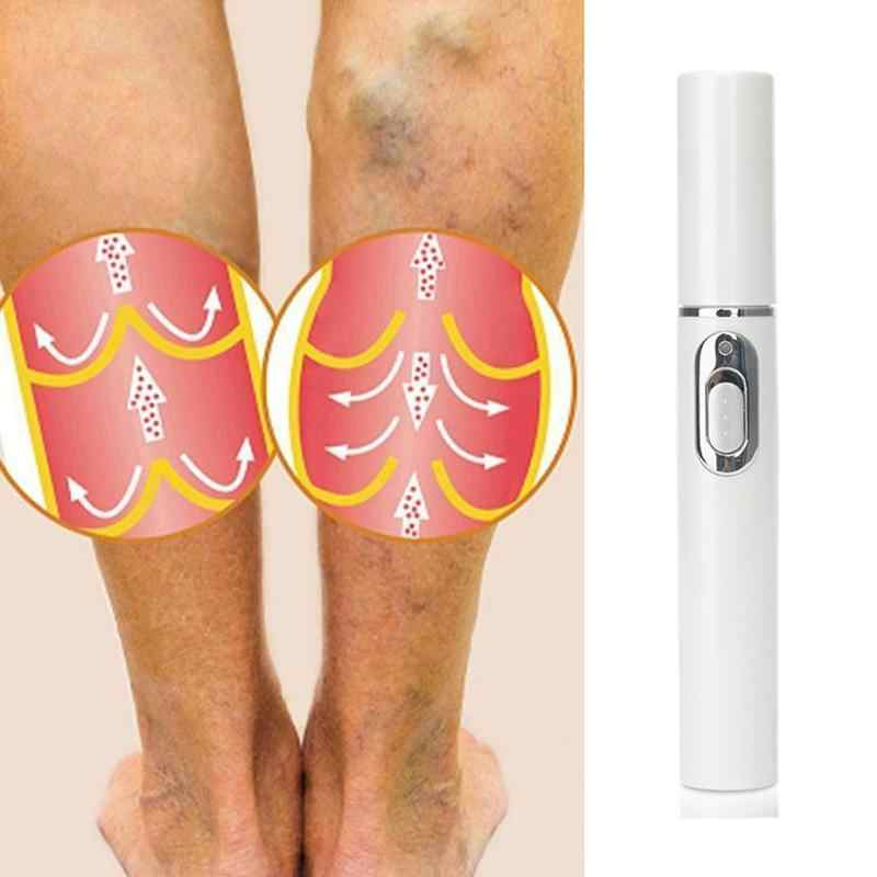 1 pcs Blue Light Therapy Pen for Varicose Veins Therapy Wrinkle Acne Laser Pen